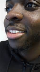 all gold and whitegold teeth picture 11