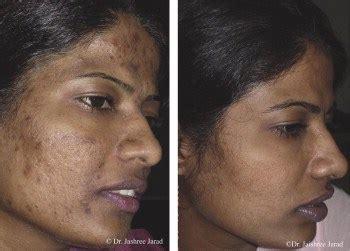 acne dark spots picture 3
