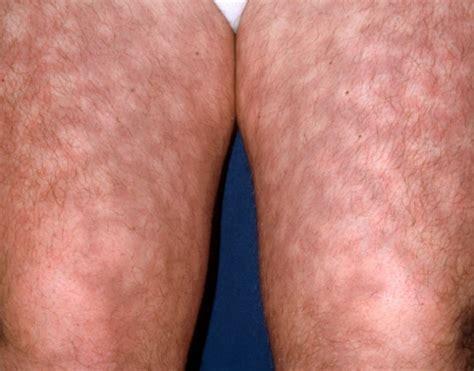 skin rash livedo picture 1