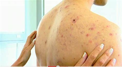 back acne picture picture 9