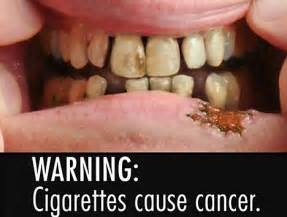 nicotine and liver damage picture 7