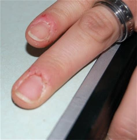 warts on cuticles picture 2