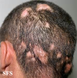 acne in hair picture 3