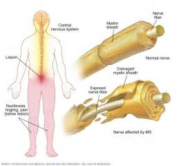 multiple sclerosis and gastrointestinal disorder picture 9