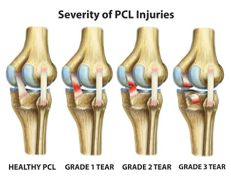 sports - knee joint picture 10