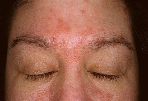 aloe vera and acne spot treatment picture 11
