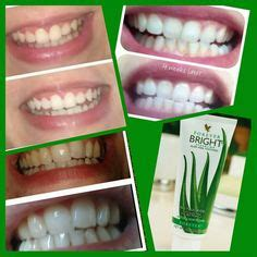 aloe vera to whiten teeth picture 5