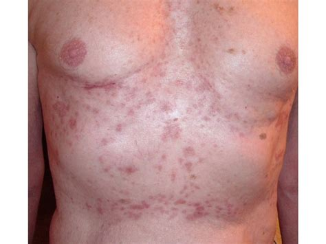virus hives picture 9