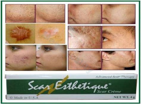 beta carotine and acne picture 2