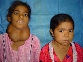 congenital hypothyroidism picture 17