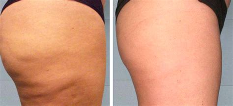 cellulite lymph system heat picture 1