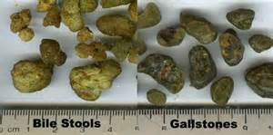 cholesteral stone gall bladder picture 1