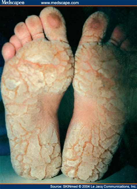 foot skin fissures picture 15