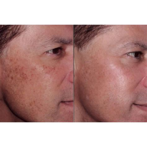 consumers acne scars thermage picture 3