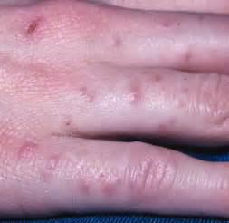 hand skin rash picture 18