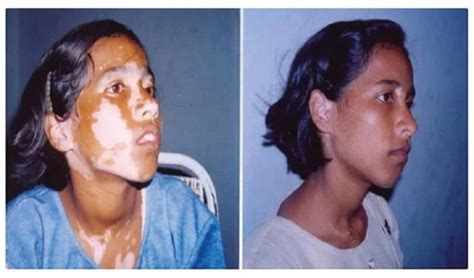 can thyroid cause vitiligo picture 5