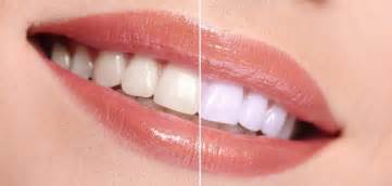 teeth whitening picture 6