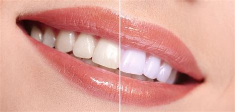 whiten teeth picture 10