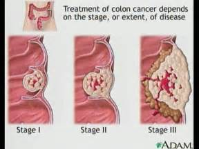 stage 4 colon cancer-low blood count picture 1