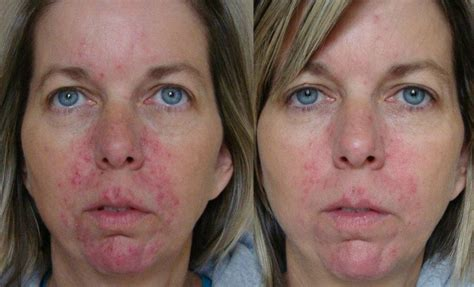 antiaging before after picture 1