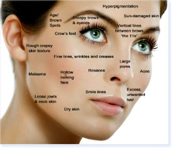 lumisse skin anti aging treatment picture 5