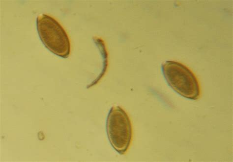 what do intestinal parasites and colon parasites look like picture 2