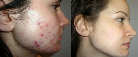 acne and pregnancy picture 5