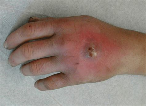 infection mrsa picture 7