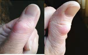 sore thumb joint picture 3