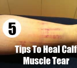 muscle tear heal time picture 2