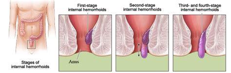 hemorrhoid picture 3