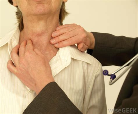 enlarged thyroid and lymph gland picture 11