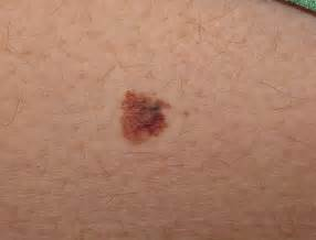 acbd diagnose skin mole picture 1