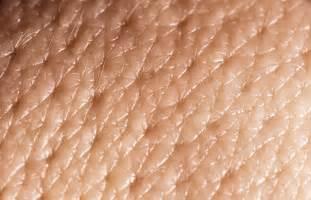 care of skin pore picture 3