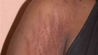 hide stretch marks picture 3
