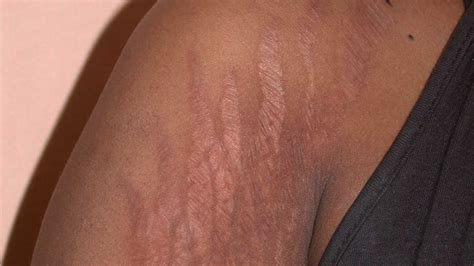 can stretch marks make a line picture 1