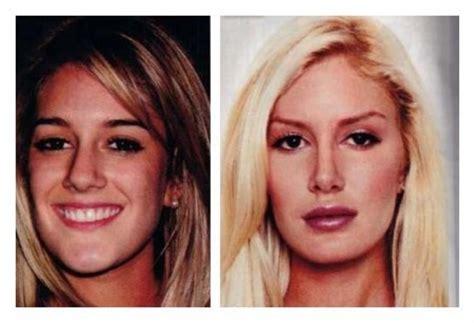 best plastic surgeon for breast augmentation in georgia picture 3