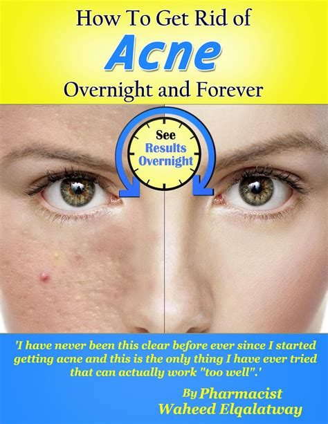 get rid of acne picture 1