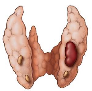 overactive parathyroid gland picture 2