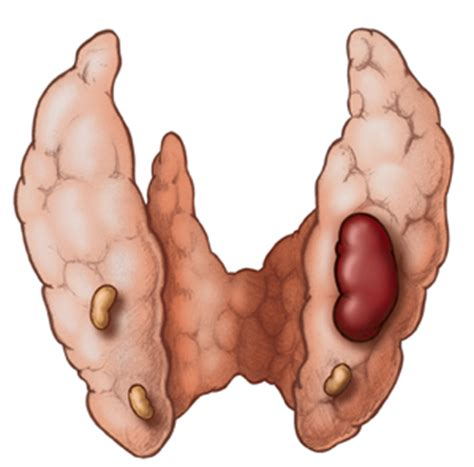 what are the symptoms of a swollen parathyroid picture 7