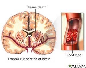 aphasia, le cerbvas disease picture 14