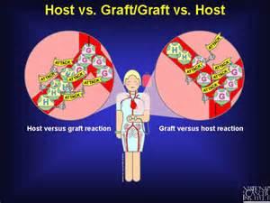 graft versus host liver prognosis picture 7