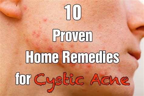 what is cystic acne picture 3