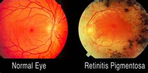 retinitis pigmentosa treatment picture 1