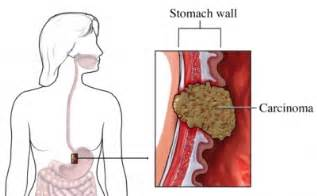 stomach intestinal cancer symptoms picture 11