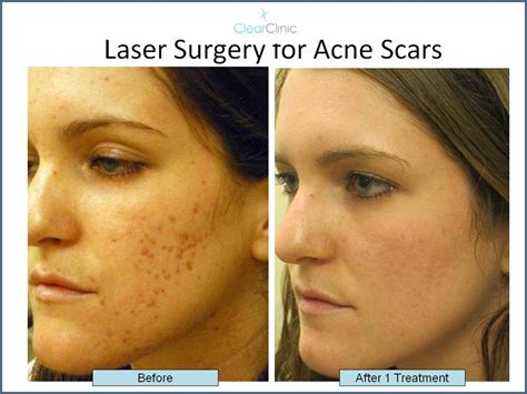 latest acne treatments picture 13