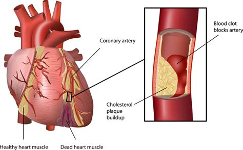 Foods high in cholesterol picture 1