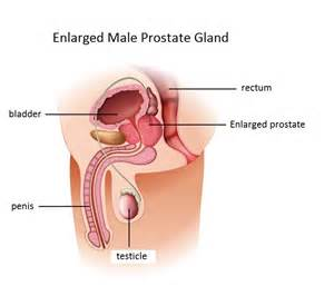 Penis size enlarged prostate picture 6