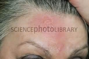 will arginine cause acne picture 5