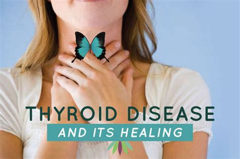 anyone can get thyroid disease picture 7